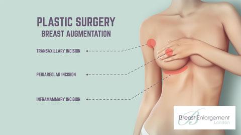 Breast-enlargement-incision